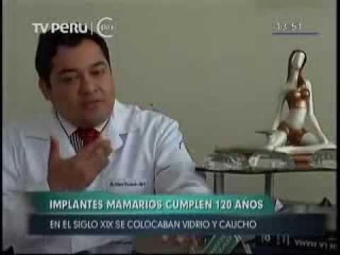 TV PERÚ NOTICIAS: DR. CÉSAR CALDERÓN HABLA SOBRE EVOLUCIÓN DE LOS IMPLANTES MAMARIOS