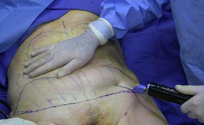 combatir-celulitis-tratamiento-2