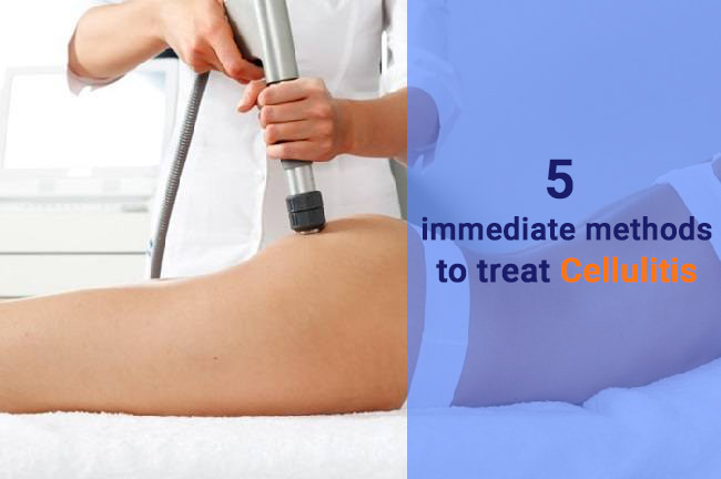 5 IMMEDIATE METHODS TO TREAT CELLULITIS