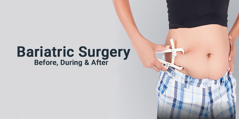 BARIATRIC SURGERY: BEFORE, DURING AND AFTER